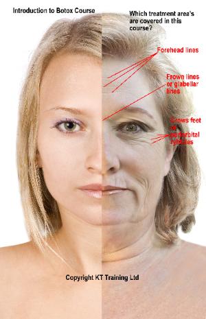 Discount Botox Prices